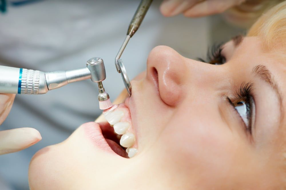 Dental-Cleaning-Consultation
