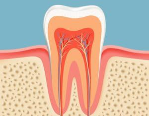 Root-Canals